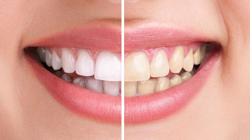 Proč si bělit zuby doma?